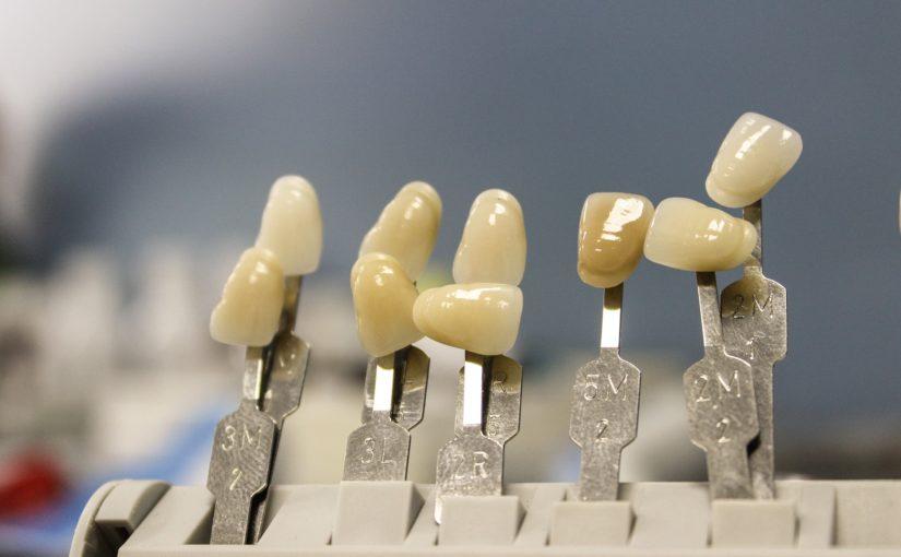 Przepiękne urodziwe zęby oraz niesamowity prześliczny uśmiech to powód do zadowolenia.